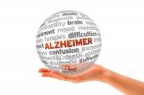 Alzheimer- socinro